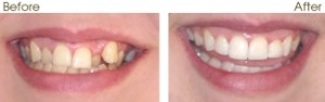 six month smiles adult braces