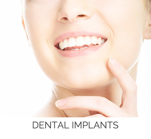 dental implants nacogdoches texas