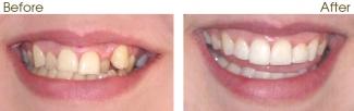 six month smiles adult braces